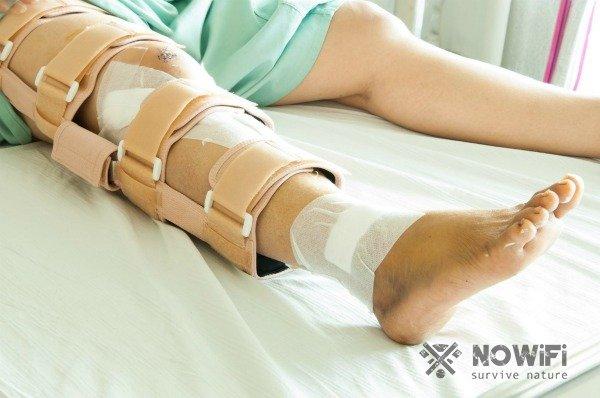 Оказание первой помощи при переломах костей