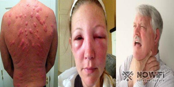 аллергическая реакция на укус насекомых
