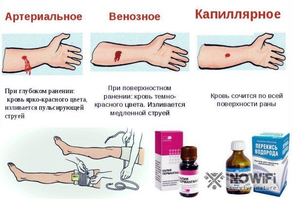 Как остановить кровь из раны